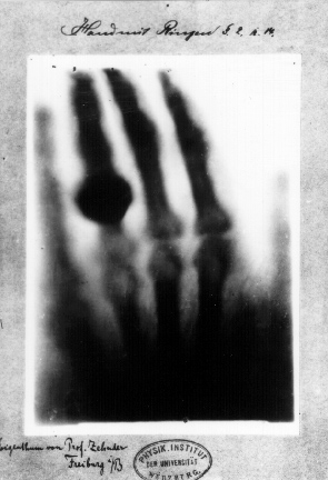 First-x-ray